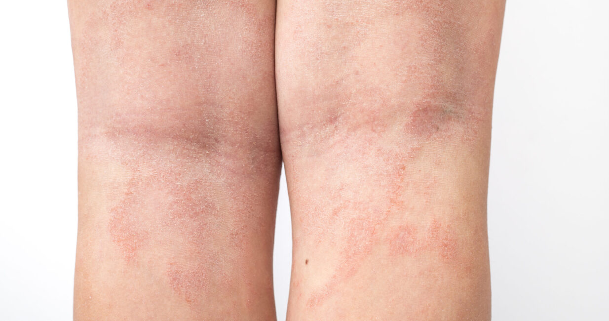 Acute,Atopic,Dermatitis,On,The,Legs,Behind,The,Knees,Of
